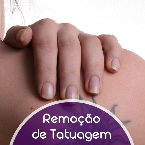Remoção de tatuagem feita pelo laser Q-Switched ND YAG. Fechando 1 pacote com 4 sessões ganha a 5° sessão