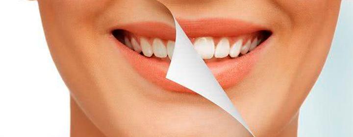 Clareamento Dentário, qual a melhor opção?