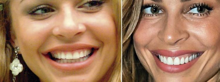 """O """"antes e o depois"""" na publicidade de dentistas"""