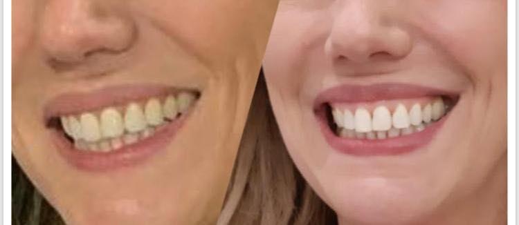 Fiz 50… E agora quero fazer um clareamento dental.